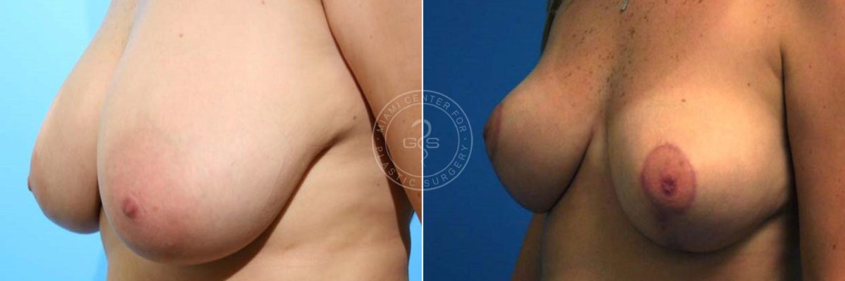 Breast Reduction before and after photos in Miami Beach, FL, Patient 3583