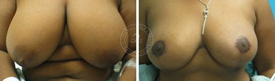 Breast Reduction before and after photos in Miami Beach, FL, Patient 2855