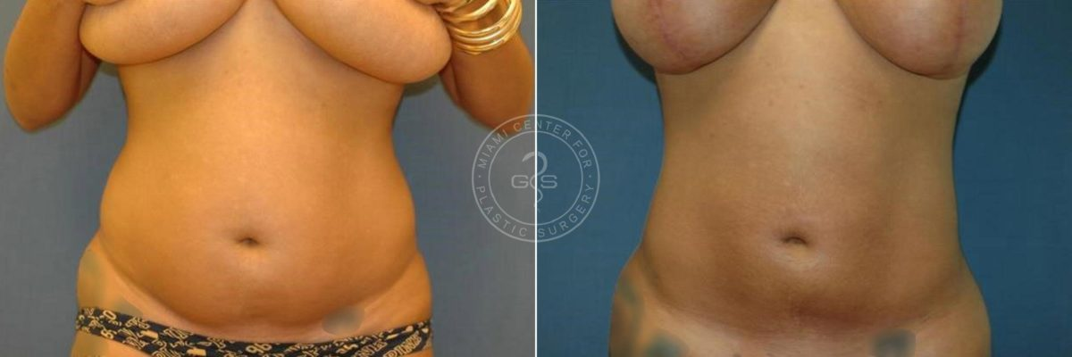 Liposuction before and after photos in Miami Beach, FL, Patient 3311
